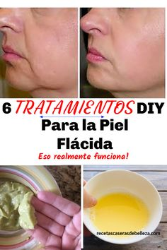 DIY Treatments for Saggy Skin These treatments for saggy skin will help your skin restore its elasticity. But before we get to these DIY treatments for saggy skin, let's talk about what causes saggy skin. via Beauty DIY, Hair, Makeup, Fashion – Skin Care Regimen, Skin Care Tips, Papaya Face Mask, Aloe Vera, Korean Beauty Tips, Honey Face, Younger Looking Skin, Younger Skin, Sagging Skin