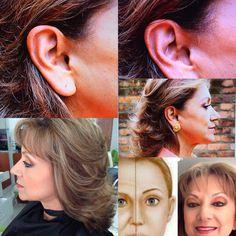 Para un rejuvenecimiento completo se deben elevar mejillas, cuello y eliminar la piel sobrante de los parpados http://www.mauriciolinares.com/cirugia-rejuvenecimiento/