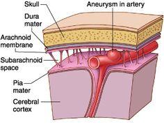 Subarachnoid Hemorrhage Non Traumatic - Medical Disability Guidelines