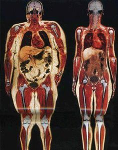 A comparison look of the weight differences in the body.