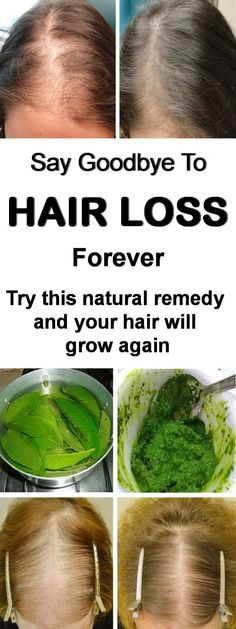 Stop hair loss instantly