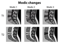 LSS MRI - Basics -Modic Changes