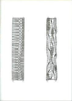 8x brazaletes - isamamo - Álbumes web de Picasa Hairpin Lace Crochet, Bobbin Lace Patterns, Lace Bracelet, Lacemaking, Lace Heart, Lace Jewelry, Needle Lace, Lace Detail, Creations