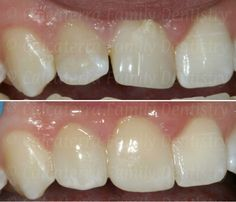 Nutritious Dental Crowns Before And After Life Dental Photos, Wisdom Teeth Funny, Toothpaste Holder, Dental Cosmetics, Dental Crowns, Family Dentistry, Health Day, After Life, Before And After Pictures