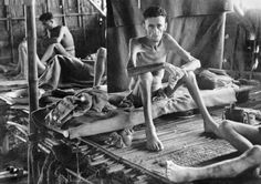 Emaciated British prisoners of war in a Japanese hospital for prisoners of war at Nakom Paton, Thailand.