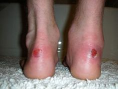 Blisters: To Pop or Not to Pop? Help your blisters heal faster.