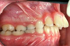 Malocclusion of the teeth is an improper alignment of one's biting or chewing surfaces. Dental Assistant Study, Dental Hygiene, Oral Pathology, Dental Life, Orthodontics, Oral Health, Dentistry, Braces, Medical