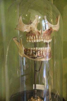 Skull Anatomical Dental Model. At the Helsinki Univeristy Museum, in Helsinki, Finland.