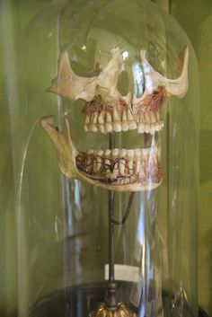 Skull Anatomical Dental Model by Curious Expeditions, via Flickr