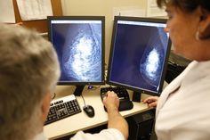 Mamografía en pantalla, evaluación de los profesionales. Diagnóstico ginecológico por imagen en Salud de la Mujer Dexeus.