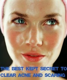 Skin Care And Health Tips: The Best Kept Secret To Clear Acne And Scarring..Trust me it works