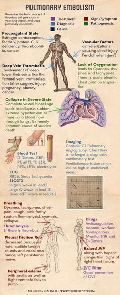 Pulmonary embolism (can be caused by DVT). Causes, signs, risk factors, diagnosis and management of pulmonary embolism Nursing School Tips, Nursing Notes, Nursing Schools, Nursing Tips, Nursing Programs, Medical School, Nursing Information, Respiratory Therapy, Respiratory System