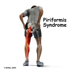Piriformis Syndrome #physicaltherapy #physiotherapy. Repinned by SOS Inc. Resources @SOS Inc. Resources.