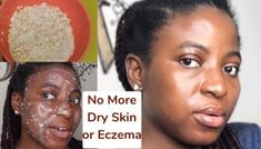 Best Ointment For Eczema. Itchy skin and eczema medication. On the list of various chronic skin disorders, eczema is among the most frequent. Oily Skin Care, Skin Care Tips, Diy Turmeric Face Mask, Tumeric Face, Mask For Dry Skin, Dry Skin On Face, Normal Skin, Combination Skin, Skin Cream