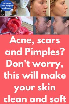 Acne, scars and Pimples? Don't worry, this will make your skin clean and soft It's a magical treatment, I love it. Acne and pimples are really a big problem. They are really annoying when they come and when they go, they leave an ugly scar. But Today you Pimples On Chin, Acne And Pimples, Acne Scars, Oily Skin Treatment, Best Acne Treatment, How To Stop Pimples, Bio Oil Pregnancy, Bio Oil Scars, Skin Tags On Face