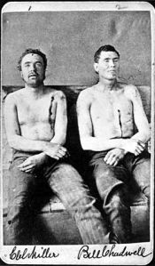 Post-mortem photograph of Clell Miller and Bill Chadwell.  Miller (left) was a member of the James Younger gang, and was shot and killed during a botched bank robbery.  Years later there was some mystery about what happened to his remains.  In 2012 forensic investigators compared a CT scan of a skull with this post-mortem photograph and used a technique of cranial superimposition to figure out if the skull could belong to Clell Miller.