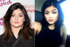 lip fillers, kylie jenners