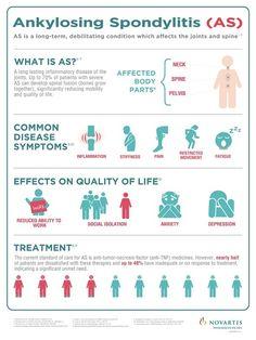 Ankylosing Spondylitis infographic