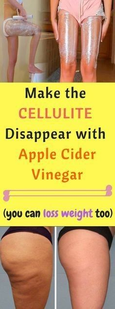 Apple Cider Vinegar Make The Cellulite Disappear And Lose Weight With Apple Cider Vinegar - This persistent subcutaneous fat usually appears on thighs, hips, and breasts of women. A skin with cellulite resembles an orange peel or a cottage cheese. Cellulite Cream, Reduce Cellulite, Anti Cellulite, Cellulite Workout, Cellulite Scrub, Aloe Vera Creme, Apple Cider Vinegar Remedies, Apple Cider Vinegar Bath, Apple Cider Vinegar Results