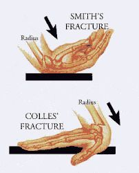 smith and colles fracture - Google Search