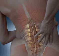 Spinal Stenosis Surgery, Spinal Stenosis Treatment, Cervical Spinal Stenosis, Cervical Spondylosis, Spine Problems, Spinal Canal, Lumbar Disc, Scoliosis Exercises, Degenerative Disc Disease