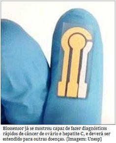 Biossensor identifica rapidamente câncer de ovário e hepatite C