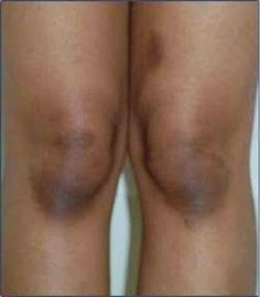 Receita caseira para clarear joelhos, cotovelos e axilas | Cura pela Natureza.com.br