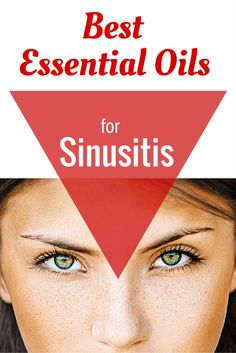 Remedies For Sinusitis Here are the best essential oils to help treat sinus ailments like infections and stuffiness. - Here are the best essential oils of sinusitis. Recipes, techniques, and ways aromatherapy can help with sinus infections and sinusitis. Essential Oils For Headaches, Essential Oil Uses, Doterra Essential Oils, Essential Oil Diffuser, Yl Oils, Young Living Oils, Young Living Essential Oils, Sinus Infection Remedies, Oil For Headache
