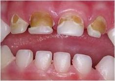 Tooth Information on Pinterest | Teeth, Wisdom Tooth and ...