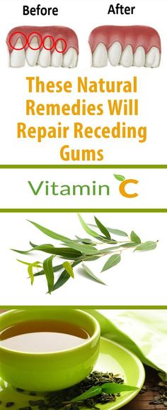 If you are suffering from receding gums, have no fear, you are not the only one. GIVE A TRY!!!