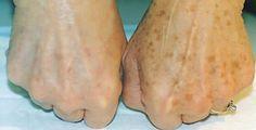 Come ringiovanire la pelle delle mani | Rimedio Naturale