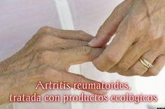 Artritis reumatoides, tratada con productos ecológicos | Sentirse bien es facilisimo.com