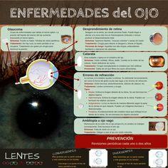 Ana Cano. Enfermedades del ojo