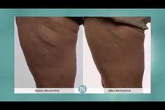 Nerium Firm reduces the appearance of cellulite, tightens loose skin, smoothens, rehydrated, and much more!