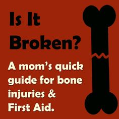 There are a ways to tell if a bone is broken.  Maybe these will save you some time and a copay.