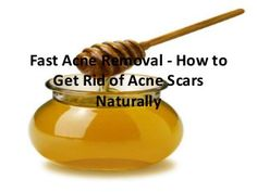 Fast Acne Removal - How to Get Rid of Acne Scars Naturally