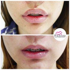 #Punisaclinic #ศัลยกรรม #ปาก #ศัลยกรรมปาก #ปากบาง #ปากกระจับ #ปากปีกนก  #Beauty #Number1 #Lips #LipReduction #LipSurgery #Professional #Lip #Reduction #Surgery #Thailand #plasticsurgery #lipreductionsurgery #thailand #doctorthinlips#Punisaclinic #lipsurgery #lipreduction#lipreductionsurgery #asianlips #plasticsurgeons#plasticsurgery #Thailandsurgery Lip Surgery, Moth, Lips, Make Up
