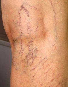 Remove Cellulite And Carve The Body Of Your Dreams: Want Real Cellulite Treatment? 6 True Tips For Cellulite Reduction From An Anti Cellulite Expert Varicose Vein Remedy, Varicose Veins, Foot Remedies, Natural Remedies, Fitness Workouts, Pilates Workout Routine, Health And Beauty Tips, Health Tips, Cellulite Remedies