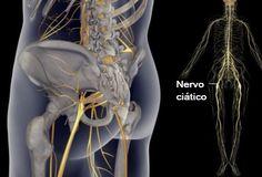 Tratamentos e recomendações para aliviar as dores do nervo ciático