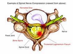 Example of Spinal Nerve Compression