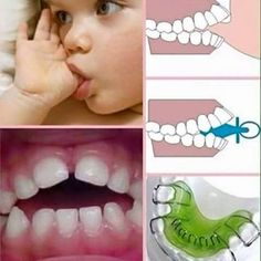 Children who suck their thumb, fingers, binky, or pacifier can develop problems with the roof of their mouth and how their teeth come together. Most children stop between ages 2 and 4. Thumb sucking should stop before the child's permanent teeth start coming in.