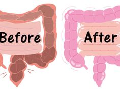 Cleanse your colon and lose 20 pounds in 3 weeks