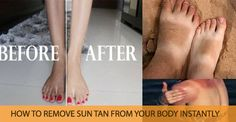 How To Get Rid of Sun Tan in 10 Mins - B & G Fashion