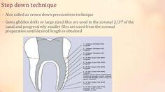 Incresaed removl of tooth structure Less tactile sensitivity Eugene Tong Endomondo Sports Tracker Worldental Dental Health Magazine Around the world8
