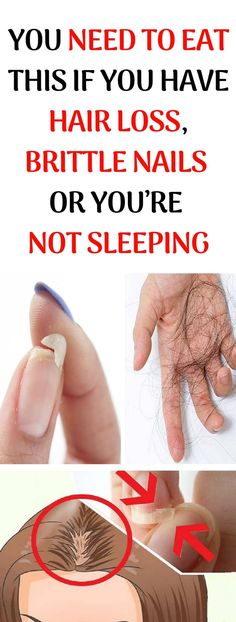 You Need To Eat This If You Have Hair Loss, Brittle Nails Or You'Re Not Sleeping well – naturalremedies Health And Beauty, Health And Wellness, Health Fitness, Nails And Health, Holistic Wellness, Wellness Tips, Health Diet, Natural Cures, Natural Health