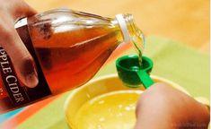 Sådan bruger du æblecidereddike i din skønhedsrutine Home Remedies, Natural Remedies, Soda Recipe, Nutrition, Apple Cider Vinegar, Healthy Alternatives, Beauty Routines, Hot Sauce Bottles, Baking Soda