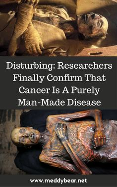 Disturbing: Researchers Finally Confirm That Cancer Is A Purely Man-Made Disease