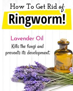How to Get Rid of Ringworm? - Home Remedies for Ringworm How to Get Rid of Ringworm? - Home Remedies for Ringworm How to Get Rid of Ringworm? - Home Remedies for Ringworm How to Get Rid of Ringworm? - Home Remedies for Ringworm Home Remedies For Ringworm, Natural Home Remedies, Organic Skin Care, Natural Skin Care, Get Rid Of Ringworm, Back Acne Treatment, Baby Acne, Baby Care Tips, How To Get Rid Of Acne