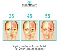 50 Best Thread lift images in 2018 | Facial anatomy, Thread