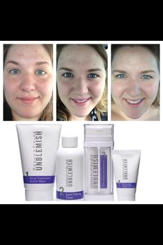 Rodan + Fields Unblemish Regimen is incredible! Goodbye acne! Check out this before and after photo! #acne #breakouts #skincare  https://courtneyhammons.myrandf.com <---amazing products https://courtneyhammons.myrandf.biz <--- amazing business opportunity